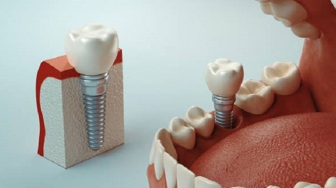 Types Of Dental Implants And Techniques: Which One Is Best For You?